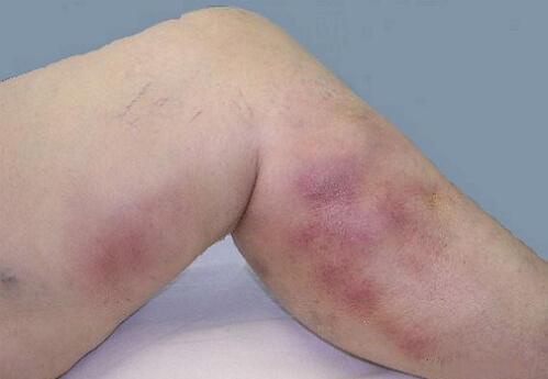 Oppervlakkige flebitis